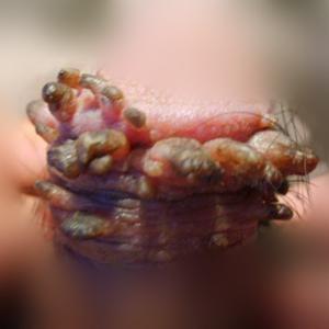 尖锐湿疣患者割包皮后变严重的症